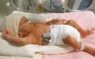 Развитие недоношенных детей по месяцам