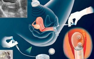 Ощущения после переноса эмбрионов по дням