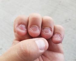 Ребенок грызет ногти: причины