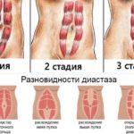 Упражнения при диастазе после родов
