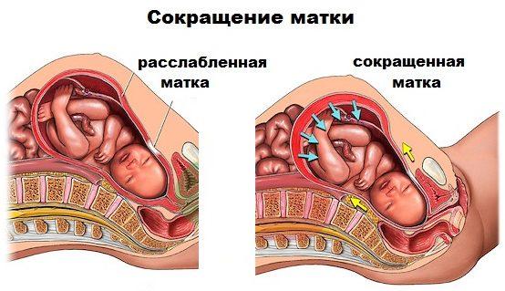 Матка после родов, сокращение матки после родов, после родов, расслабленная матка, сокращённая матка