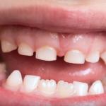 Когда начинают выпадать молочные зубы у детей?