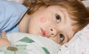Чем лечить лишай у ребенка 7 лет?
