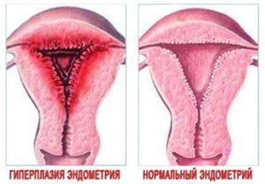 Норма эндометрия по дням цикла: таблица