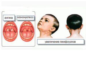 Инфекционный мононуклеоз у детей: клинические рекомендации